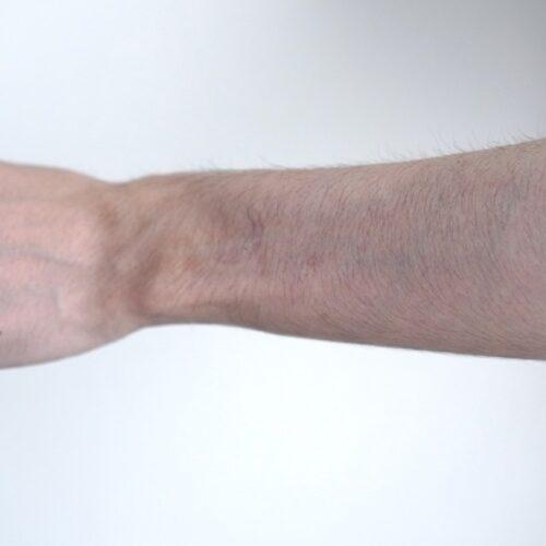 腕毛を手入れする前の状態画像