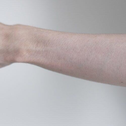 3mmのシェーバーで腕毛を仕上げた画像
