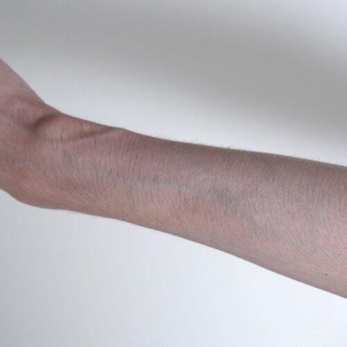 5mmのシェーバーで腕毛を仕上げた画像