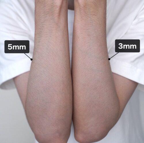 腕のムダ毛の処理を長さで比較した画像