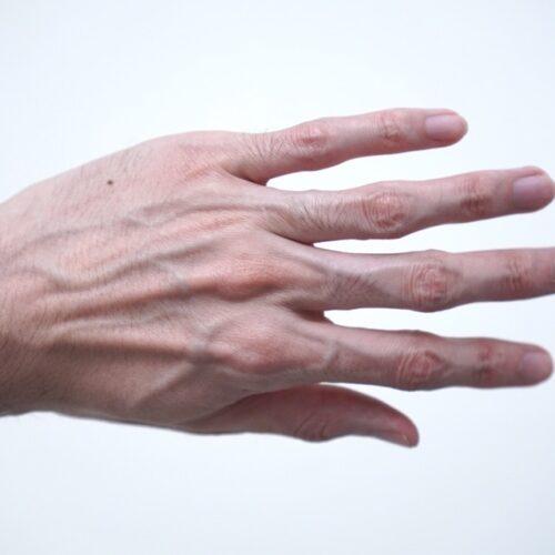 手の甲の毛を処理する前