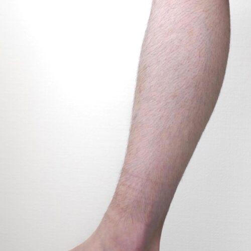 7mmのシェーバーで足の毛を仕上げた画像