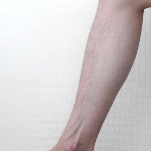 5mmのシェーバーで足の毛を仕上げた画像