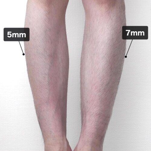 足のムダ毛の処理を長さで比較した画像